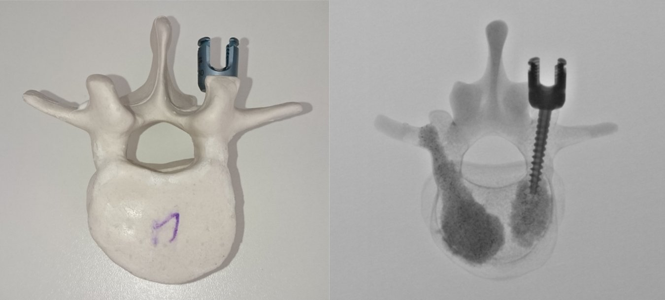 left: artificial vertebra, right: fluoroscopy (courtsey of Prof. Fellner, General Hospital Linz - AKH)